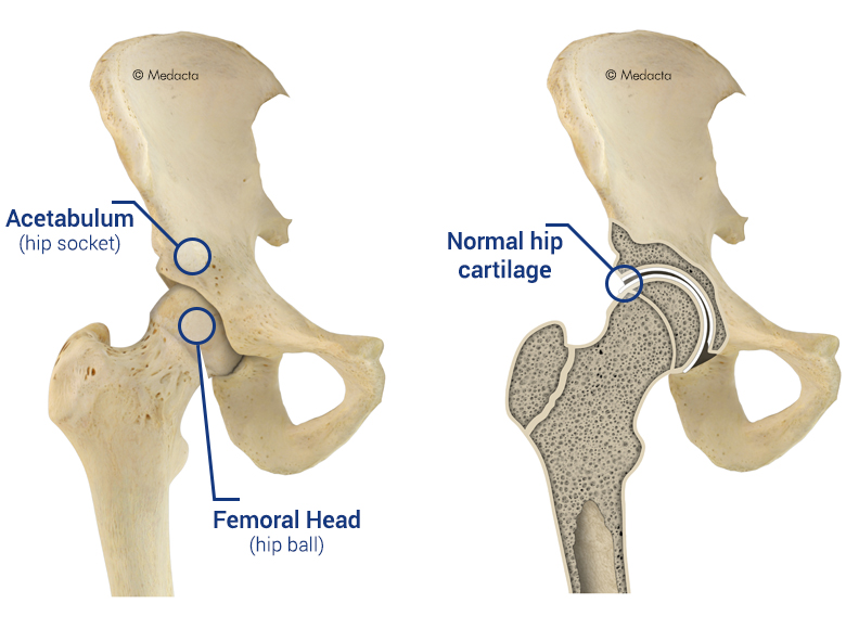Hip replacement anatomy