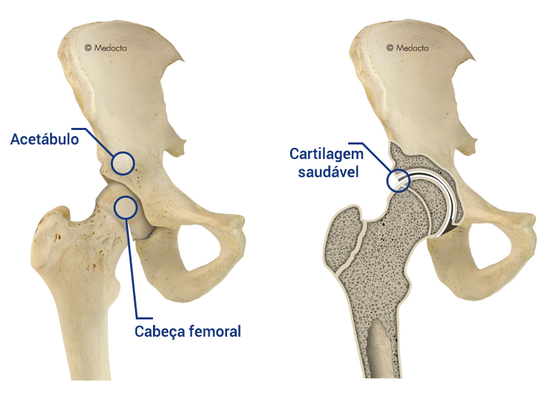 HIP_ANATOMY_Portoghese_Global_Big